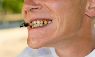 Mouth with teeth affected by nicotine